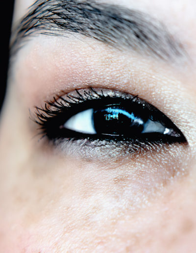 closeup of woman's eye with scar from corneal transplant surgery as a child.