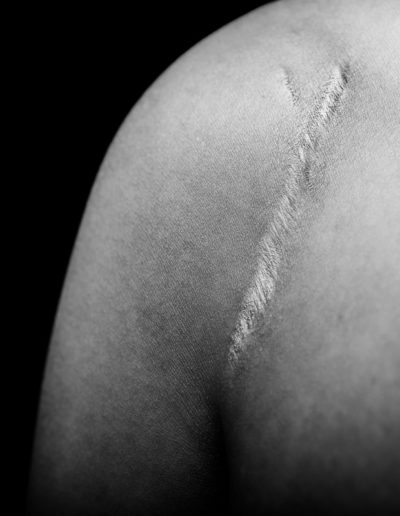 black and white photo of surgical scar on woman's shoulder