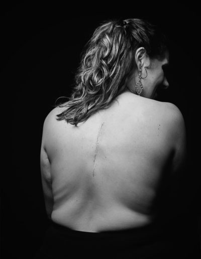 color image of woman's back scar from spinal surgery