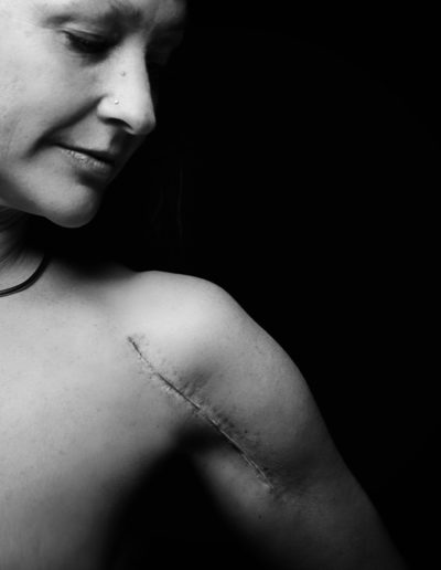 black and white image of woman with scar from shoulder replacement surgery