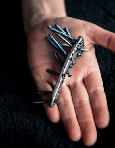 woman holding titanium plate with screws from shoulder surgery in her hand