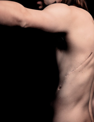 man with scars from surgery to remove cancerous growths