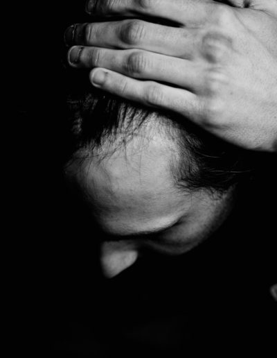 black and white image of man with scar on his head from brain tumor surgery