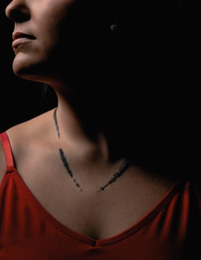 lightning strike survivor with burn scars from necklace