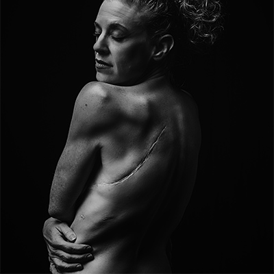 nude female with large scar on shoulder blade